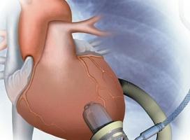 Pierwsze sztuczne serce zamontowane na stałe w organiźmie dziecka